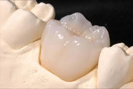How can dentist make a crown look like your tooth?