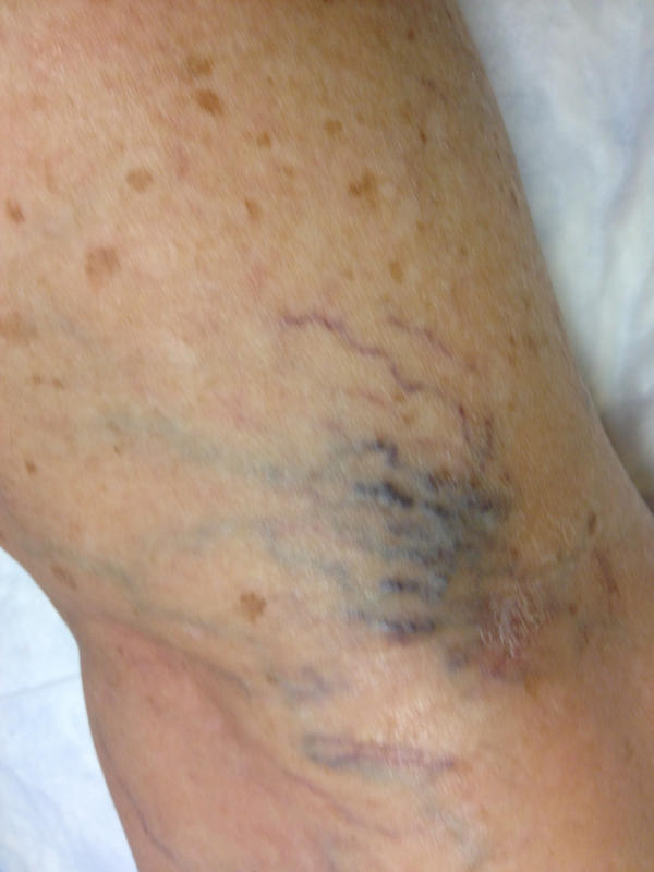 Need expert advice. After sclerotherapy can I drive home by myself?