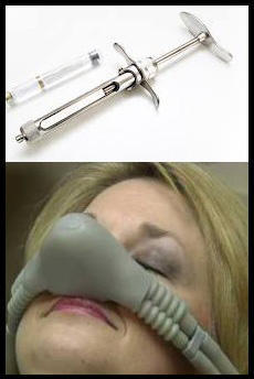 Can you suggest any alternative to laughing gas and shots?