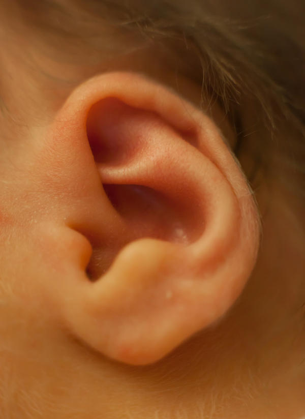 My son has a msra ear infection and has ear tubes. Can you explain this please?