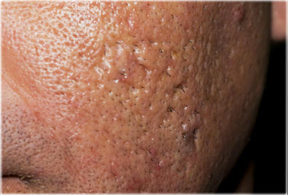 How to get rid of all my acne & acne scars?