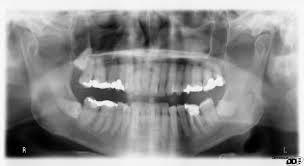 If my tooth abcesss wad to spread could my dentist tell on a panograohic X-ray the one th at goes around your head.