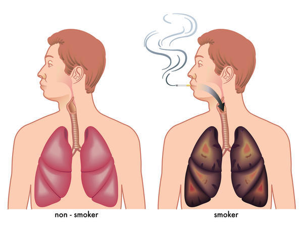 What does hubbly smoking do to your lungs?