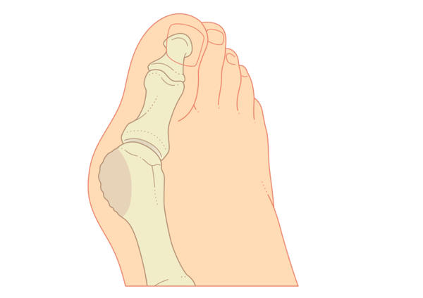 Would my overlapping second toe and severe bunions cause me to have knee pain and leg numbness of the same leg? I have no pre existing leg issues.