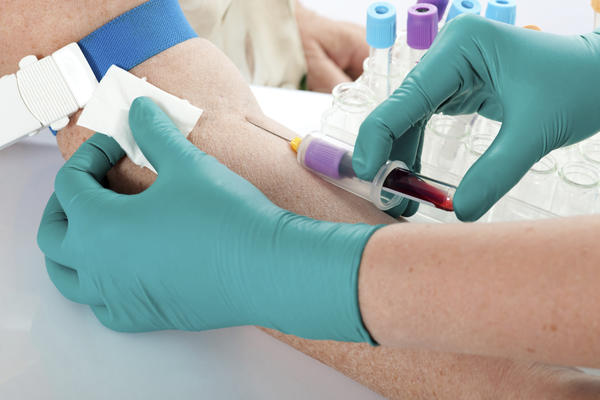 Do it take HIV years to show up on a blood test?