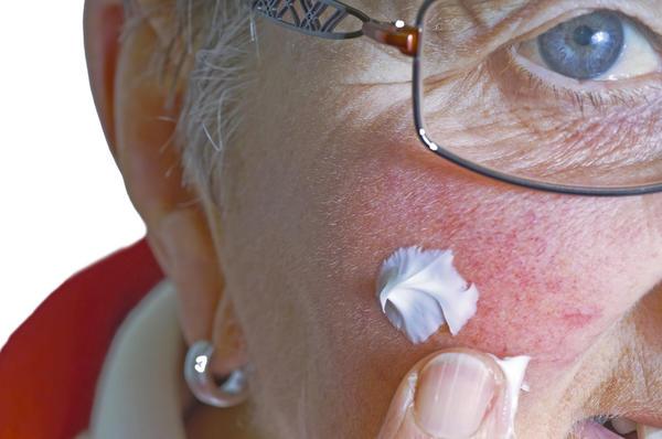 Facial psoriasis | DermNet New Zealand