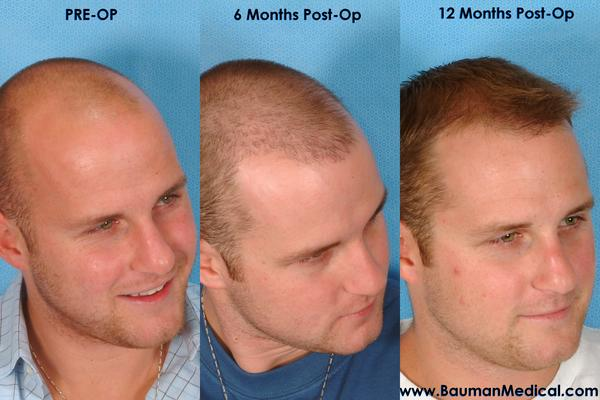Hair transplant or not to transplant, which to do?