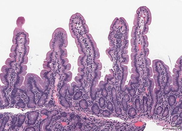 What is flatish looking duodenal mucosa?