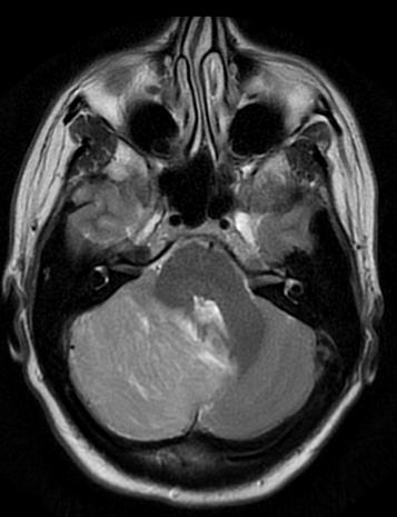 Can you please tell me if a CT scan of brain would show signs of Dyplastic gangliocytoma?