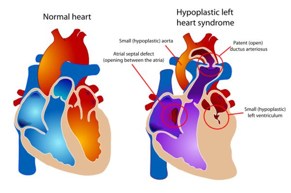 Hypoplastic left heart syndrome, what to do?