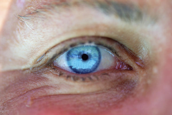 What does the whites of your eyes being blue mean?