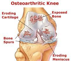 What is the reason why my dad always get knee pain? He is 67 years old man.