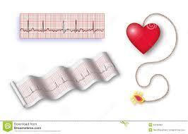 How do you read holter monitor report (heart monitor)?