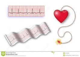 Who can give you a holter monitor? Is it only doctors?