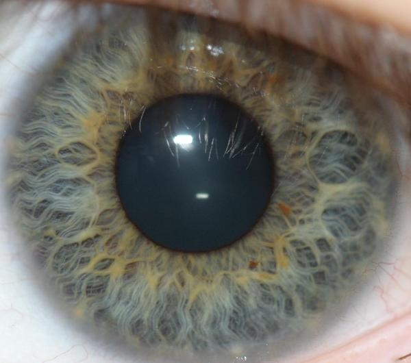 What to do if I have black lines and dots on my eye's iris?