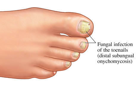 I have fungus on my nails & toes but How come my nails are clearer than my toes?