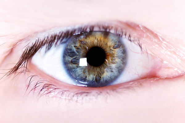 My eyes get sore and bloodshot when watching TV or playing on the Xbox or looking near a bright light. What's going on?