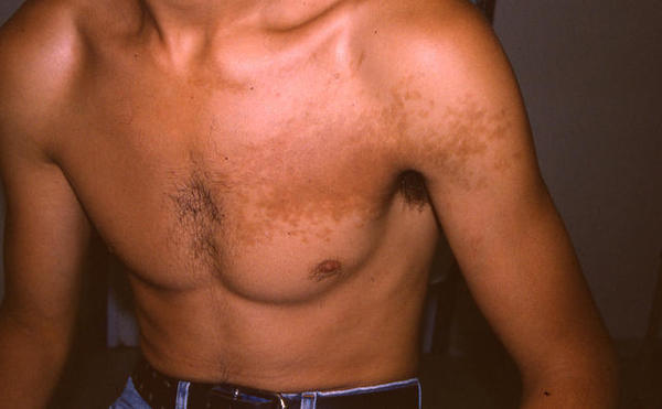 What to do if i'm suffering frm becker's naevus and have a lot of body hair.So is this the reason?