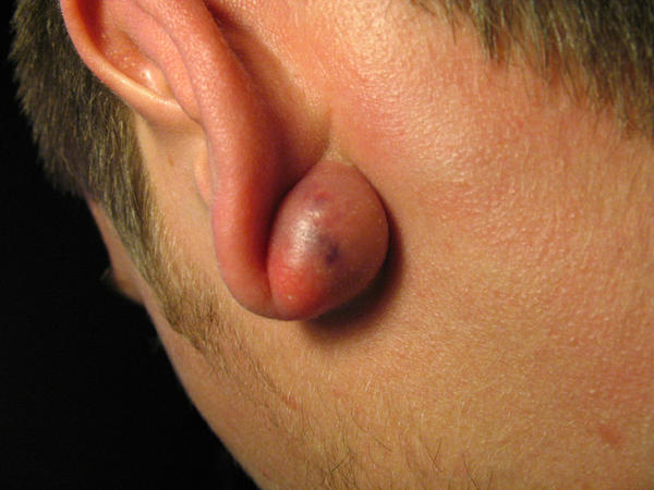 The cyst behind ear has swelled up to the size of a grape, and it's causing me some pain?