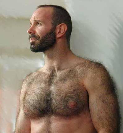 What hormones are responsible for excessive body hair?