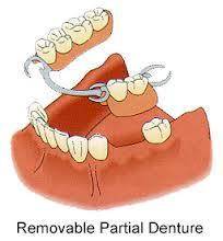 My partial denture plates are not as sharp as mine were. They don't even have the lil indentation on the teeth. What to do ?