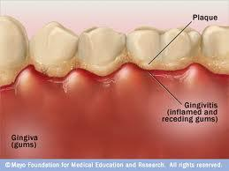 How long will it take for all of your gums when they are red and swollen to get better?