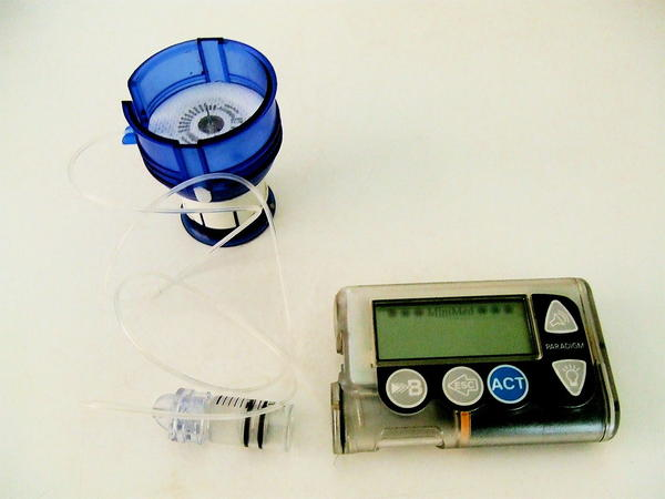 Where is an insulin pump placed on the body?