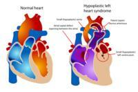 What to do about hypoplastic left heart syndrome?