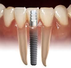 If you had a one of your incisor tooth taken out because it loss the dentin and enamel and you had nothing wrong with your root. What would happen?