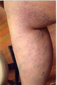 Can you tell me how sclerotherapy work with small spider veins?