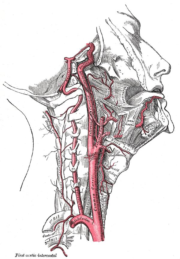 Hearing my heartbeat in my head sometimes. Is this indicative of carotid artery disease?