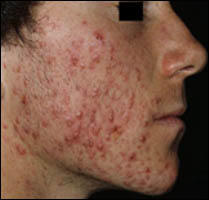 Please tell me what are some home remedies you use to cure/reduce acne?