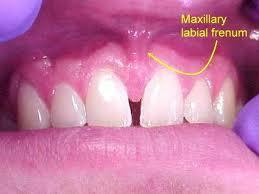 Doctors, can my frenulum grow back after frenectomy?