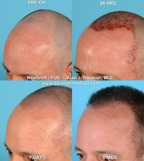 Is it true that hair transplant is only good for 5 years cause that is the normal life span of hair follicles?