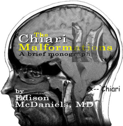 I've recently been diagnosised with chiari malformation and my symptoms are worse and getting new symptoms as well. So I be worried?