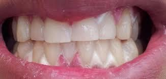 I brushed my teeth with baking soda n peroxide and i ended up with white spots on my gums now im concerned i might have been poisoned by peroxide??