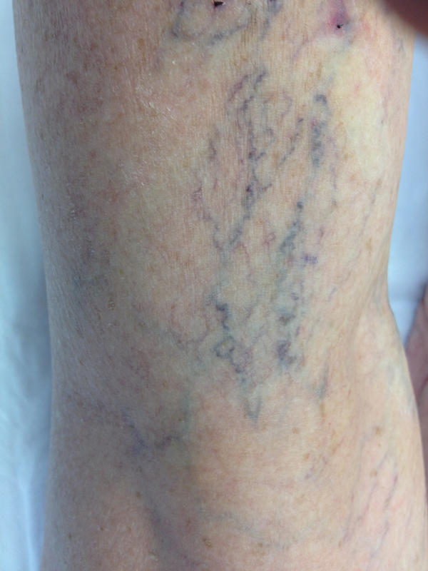 Visible superficial vein on right shin when standing or sitting. It's not twisted and doesn't look like varicose vein. Does it require treatment?