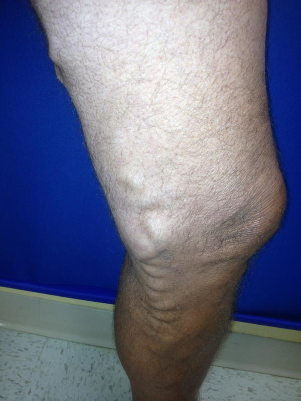 I found a varicose vein midway down my left leg (it's pretty much a large, bulging vein, blue-y/green?