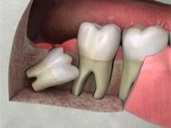 My dentist advised me to remove 2nd molar tooth in lower jaw in order to let the wisdom tooth to grow up. I'm 28 years old and will it be ok to remove?