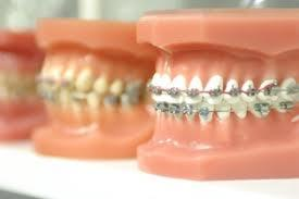 Which looks more natural: ceramic braces or metal braces?