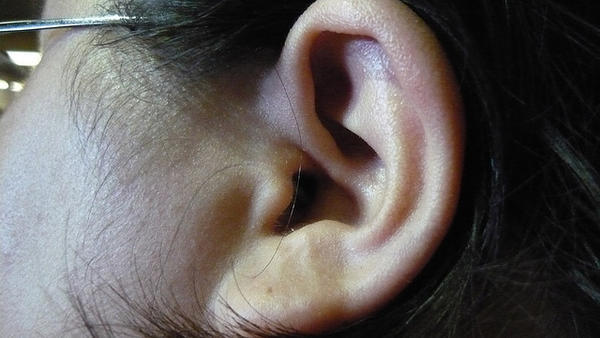 Can ringing in one ear be caused from sinus surgery?