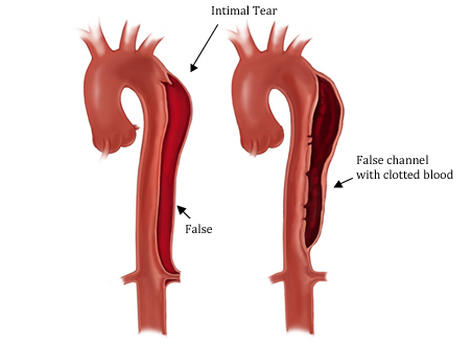 Can I get aortic dissection without being hospitalized?