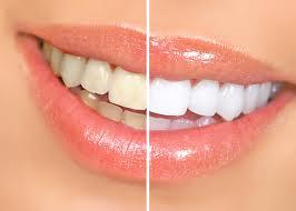 Teeth whitening at a dentist's office may take 1 hour in 1 visit but, in place of it, home bleaching trays (via DDS) takes longer but lasts longer?