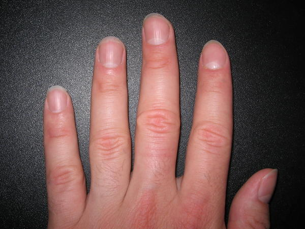 Fragile finger nails.  Horizontal dents on almost all fingers. Some have double.  Peeling toe nails, hair thinning.