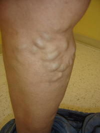 Do you know any way I can get rid of bulging veins naturally?