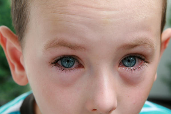 Could you tell me what is the problem with a child's eyes if it was dropping lot of tears and lot of dust forming in lids?