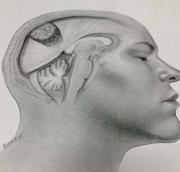 Mucoperiosteal thickening  (applying to post meningioma resection)    what does this mean and affects?