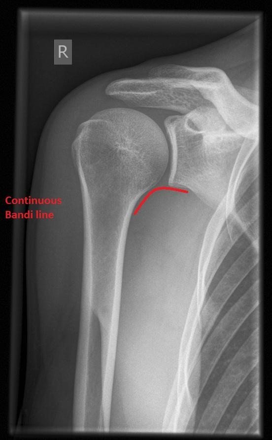 What is the best treatment for a torn rotator cuff?