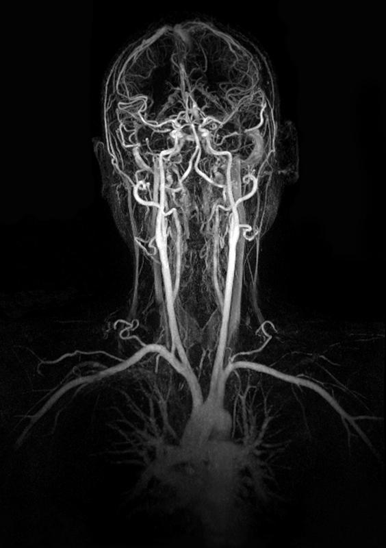 Can mri's show if there is less blood flow to the brain from a pinched or compressed vertebral artery? If they just do a scan of your brain notneck
