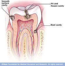 What can cause often occurance of caries (once in 6 months) despite following all hygiene and washing teeth regularly and abstain from sweets?